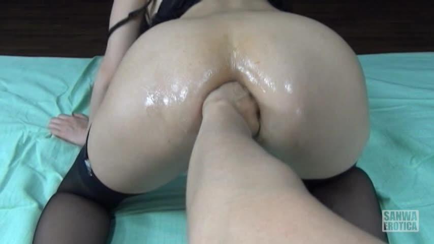 肛門極限拡張4